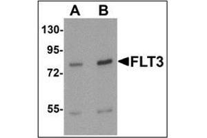 Western Blotting (WB) image for anti-FLT3 antibody (Fms-Related tyrosine Kinase 3) (N-Term) (ABIN1449983)