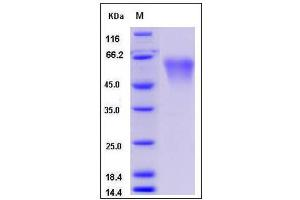 Image no. 1 for Complement Decay-Accelerating Factor (CD55) (AA 1-361), (Mature) protein (His tag) (ABIN2007840)