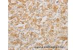 Immunohistochemistry (IHC) image for anti-AES antibody (Amino-terminal Enhancer of Split) (ABIN2422571)
