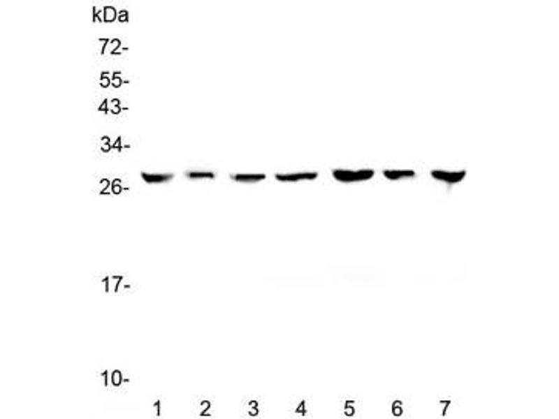 Western Blotting (WB) image for anti-tyrosine 3-Monooxygenase/tryptophan 5-Monooxygenase Activation Protein, zeta Polypeptide (YWHAZ) antibody (ABIN5708416)