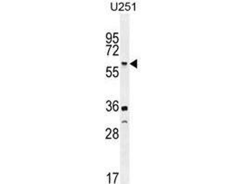 Western Blotting (WB) image for anti-Tumor Necrosis Factor Receptor Superfamily, Member 1A (TNFRSF1A) (AA 24-52), (N-Term) antibody (ABIN951180)