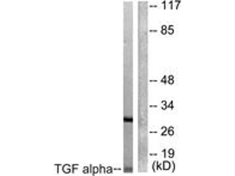 Western Blotting (WB) image for anti-Transforming Growth Factor, alpha (TGFA) (AA 111-160) antibody (ABIN1533415)