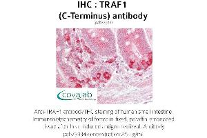 image for anti-TRAF1 antibody (TNF Receptor-Associated Factor 1) (C-Term) (ABIN1740243)