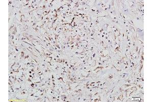 Immunohistochemistry (Paraffin-embedded Sections) (IHC (p)) image for anti-IGF1R antibody (Insulin-Like Growth Factor 1 Receptor) (AA 260-290) (ABIN726575)