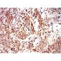 anti-EIF2A antibody (Eukaryotic Translation Initiation Factor 2A, 65kDa) (AA 448-576)