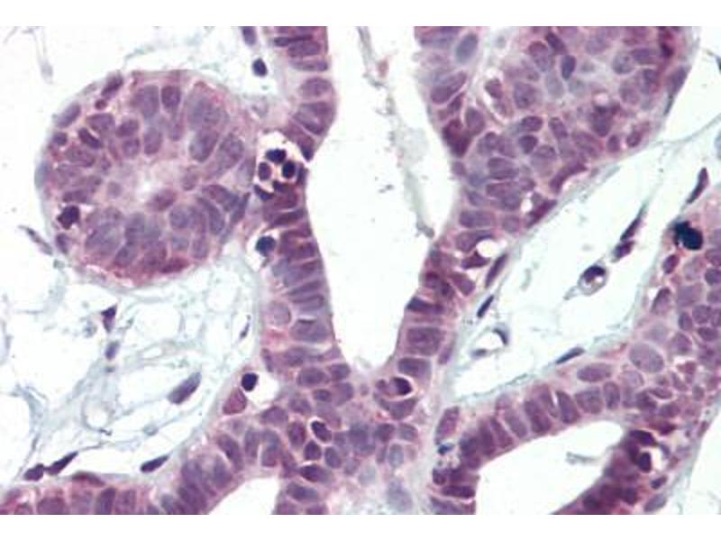 Immunohistochemistry (Paraffin-embedded Sections) (IHC (p)) image for anti-GATA Binding Protein 4 (GATA4) antibody (ABIN364465)