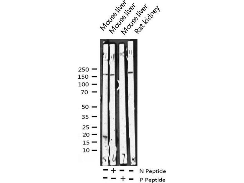 Western Blotting (WB) image for anti-V-Erb-A erythroblastic Leukemia Viral Oncogene Homolog 4 (Avian) (ERBB4) (pTyr1284) antibody (ABIN6256632)