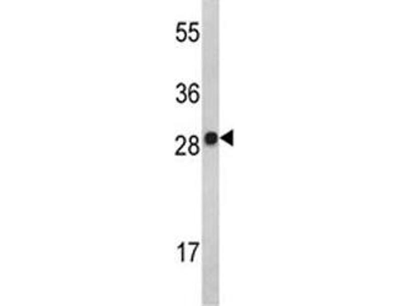 Western Blotting (WB) image for anti-IL2 antibody (Interleukin 2) (AA 50-77) (ABIN3031467)