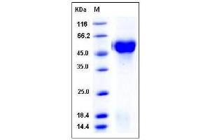 Image no. 1 for ST6 beta-Galactosamide alpha-2,6-Sialyltranferase 1 (ST6GAL1) (AA 27-406) protein (His tag) (ABIN2004401)