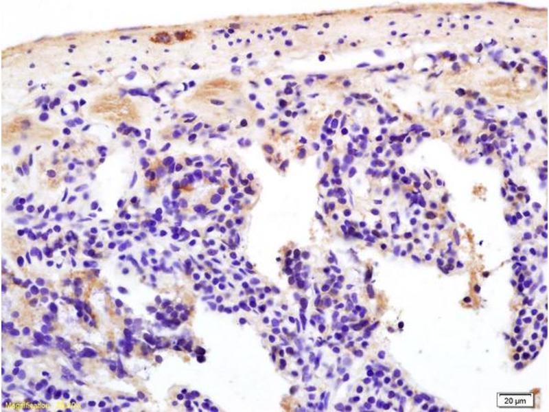 Immunohistochemistry (IHC) image for anti-S100 Calcium Binding Protein B (S100B) (AA 20-65) antibody (ABIN676703)