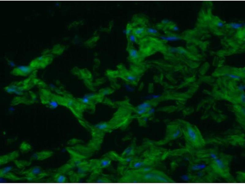 image for anti-Smoothelin (SMTN) antibody (ABIN335304)