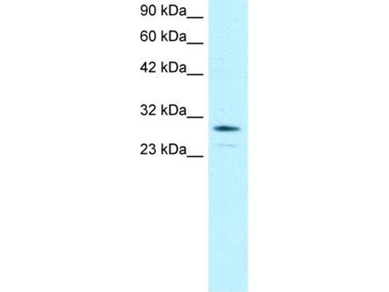 Western Blotting (WB) image for anti-Orthodenticle Homeobox 2 (OTX2) (N-Term) antibody (ABIN182571)