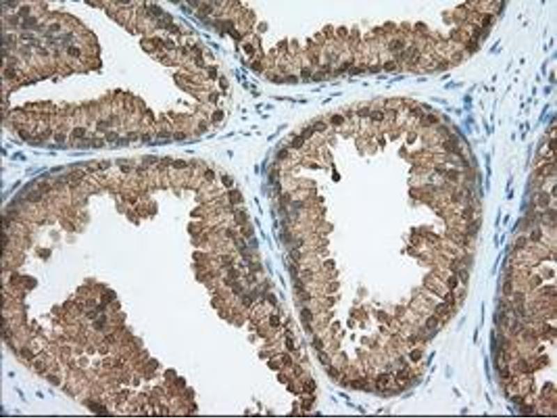 Image no. 1 for anti-Acetyl-CoA Acetyltransferase 2 (ACAT2) antibody (ABIN2715664)