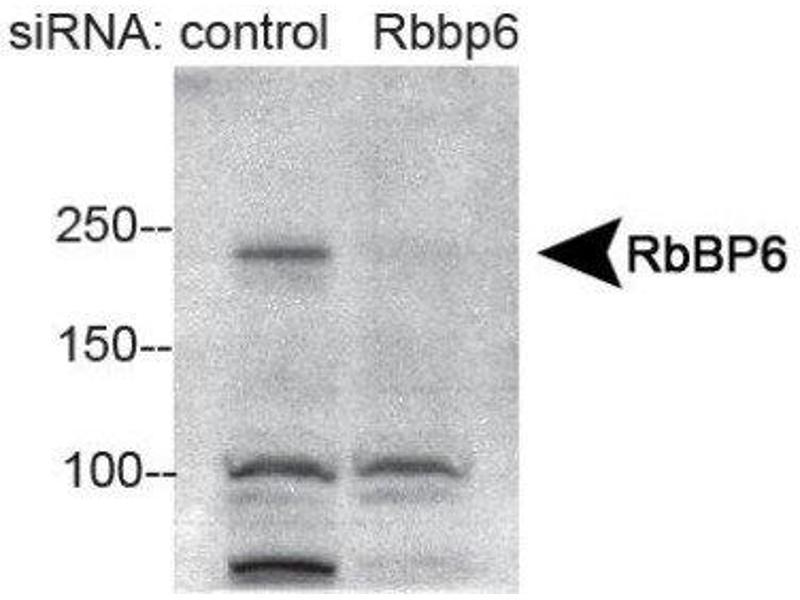 Western Blotting (WB) image for anti-Retinoblastoma Binding Protein 6 (RBBP6) (AA 1600-1650), (Internal Region) antibody (ABIN4349510)