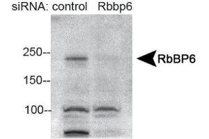 Western Blotting (WB) image for anti-Retinoblastoma Binding Protein 6 (RBBP6) (AA 1600-1650), (Internal Region) antibody (ABIN4349510)