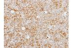 Immunohistochemistry (Paraffin-embedded Sections) (IHC (p)) image for anti-Caspase 1 antibody (CASP1) (ABIN4288006)
