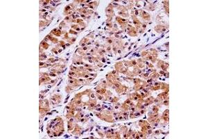Immunohistochemistry (Paraffin-embedded Sections) (IHC (p)) image for anti-Kallikrein-Related Peptidase 15 (KLK15) (AA 79-106), (Middle Region) antibody (ABIN953102)
