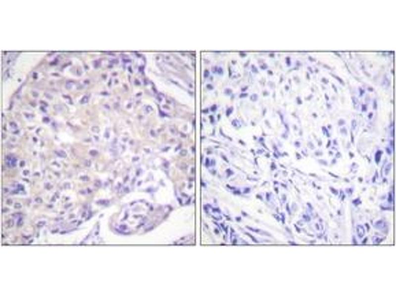 Immunohistochemistry (IHC) image for anti-PAK1 antibody (P21-Activated Kinase 1) (pThr212) (ABIN1531365)