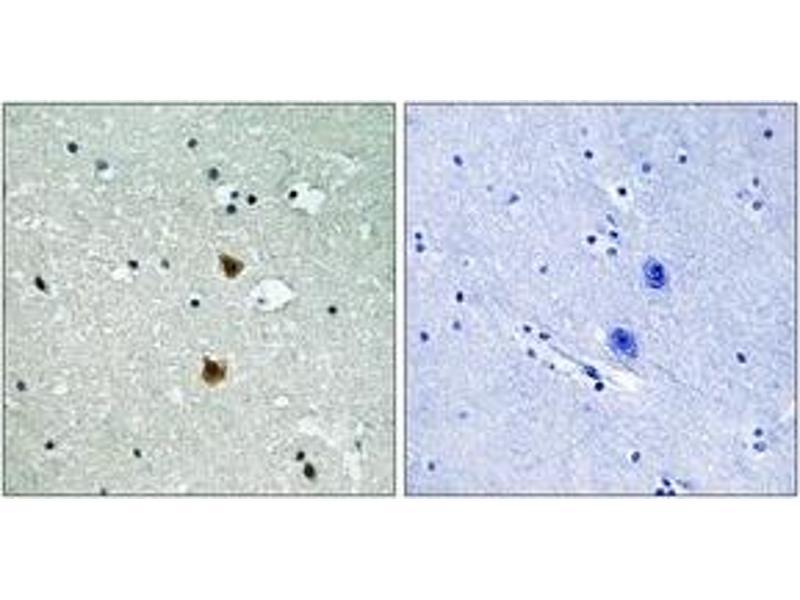Immunohistochemistry (IHC) image for anti-Heat Shock 27kDa Protein 1 (HSPB1) (AA 48-97) antibody (ABIN1532899)