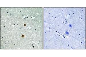 Immunohistochemistry (IHC) image for anti-HSPB1 antibody (Heat Shock 27kDa Protein 1) (ABIN1532899)