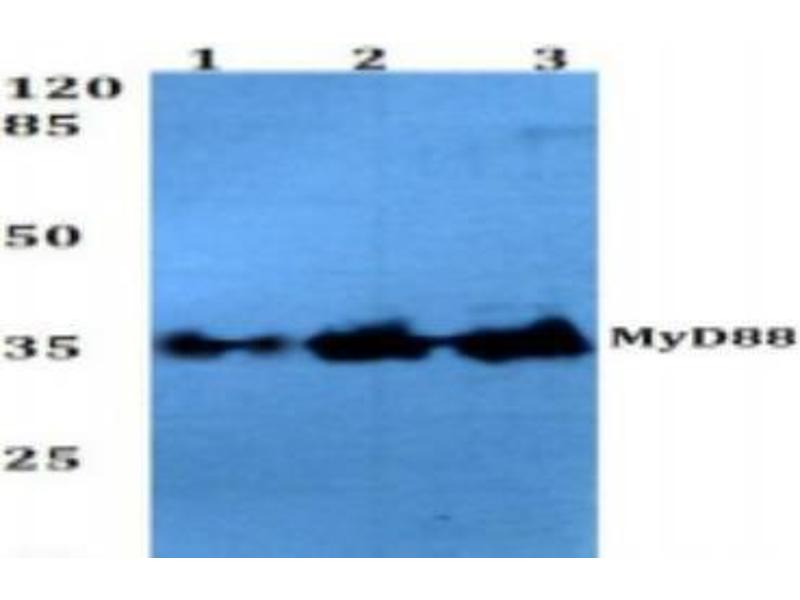 Western Blotting (WB) image for anti-MYD88 antibody (Myeloid Differentiation Primary Response Gene (88)) (ABIN446974)