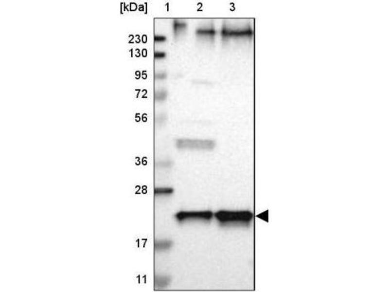 Western Blotting (WB) image for anti-Selenoprotein S (SELS) antibody (ABIN4352486)