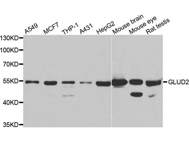 Western Blotting (WB) image for anti-Glutamate Dehydrogenase 2 (GLUD2) antibody (ABIN2969603)