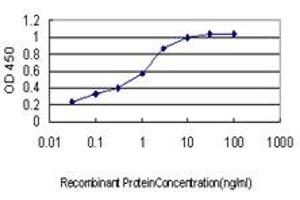 Image no. 1 for anti-Acetyl-CoA Carboxylase alpha (ACACA) (AA 1-99) antibody (ABIN559741)