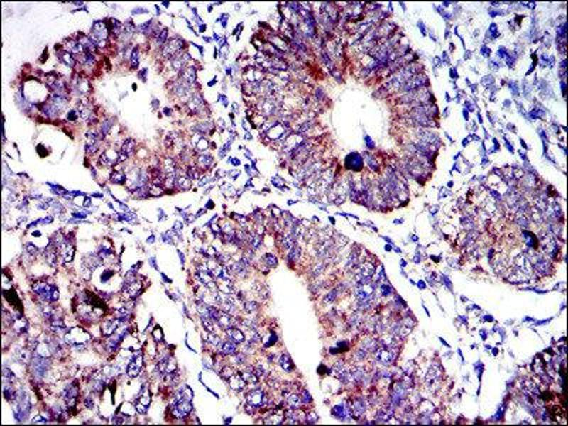 Immunohistochemistry (IHC) image for anti-Apoptosis-Inducing Factor, Mitochondrion-Associated, 1 (AIFM1) antibody (ABIN1845959)