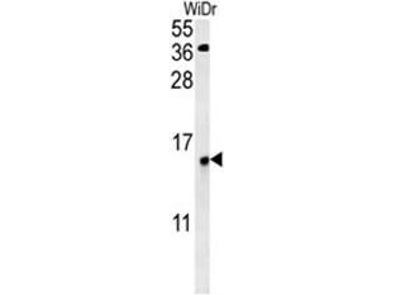 Western Blotting (WB) image for anti-Chromosome 19 Open Reading Frame 50 (C19orf50) (AA 66-95), (Middle Region) antibody (ABIN950811)