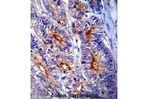 Image no. 2 for anti-Lectin, Galactoside-Binding, Soluble, 3 (LGALS3) antibody (ABIN2995387)