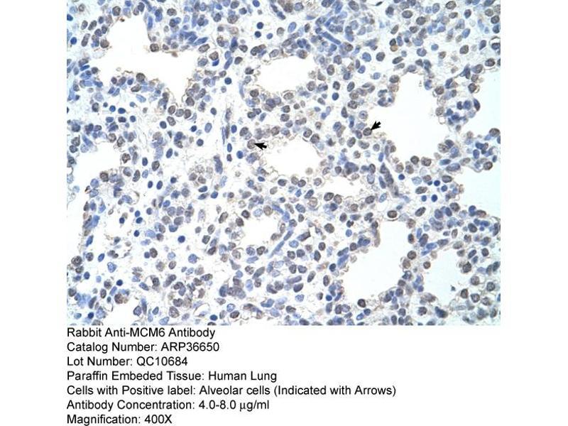 Immunohistochemistry (IHC) image for anti-Minichromosome Maintenance Complex Component 6 (MCM6) (C-Term) antibody (ABIN2774885)