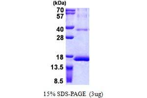 Image no. 1 for Ribosomal Protein S12 (RPS12) (AA 1-132) protein (His tag) (ABIN5852999)