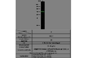 Western Blotting (WB) image for anti-RRM2B antibody (Ribonucleotide Reductase M2 B (TP53 Inducible)) (AA 1-351) (ABIN1999939)