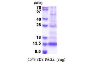 Image no. 1 for Platelet Factor 4 Variant 1 (PF4V1) (AA 31-104) protein (His tag) (ABIN5853671)