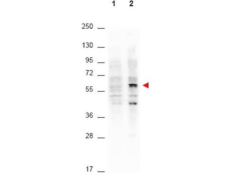 Western Blotting (WB) image for anti-AKT antibody (V-Akt Murine Thymoma Viral Oncogene Homolog 1) (Thr308) (ABIN400786)