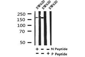 Image no. 1 for anti-Low Density Lipoprotein Receptor-Related Protein 5 (LRP5) (pTyr1473) antibody (ABIN6267898)
