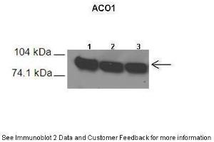 Image no. 3 for anti-Aconitase 1, Soluble (ACO1) (N-Term) antibody (ABIN2778793)