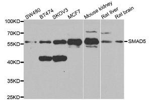 Image no. 2 for anti-SMAD, Mothers Against DPP Homolog 5 (SMAD5) antibody (ABIN3022684)