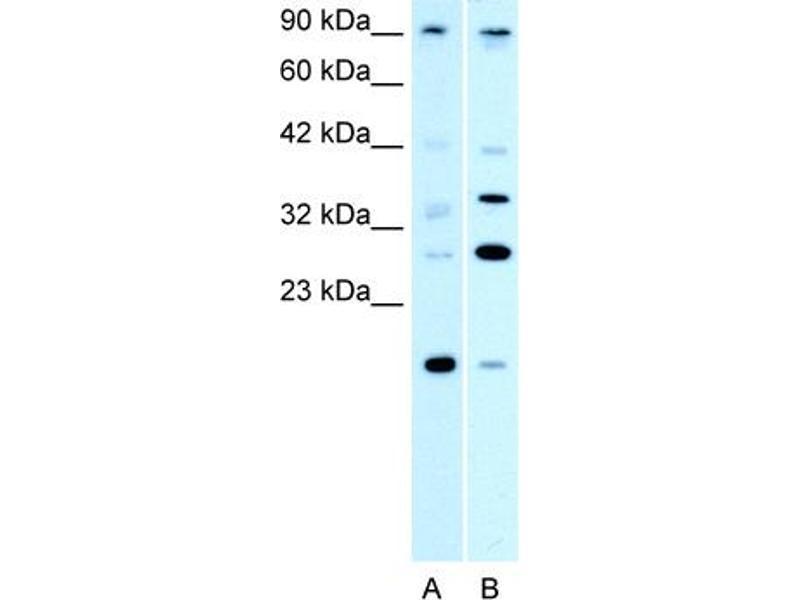 Western Blotting (WB) image for anti-Poly (ADP-Ribose) Polymerase Family, Member 11 (PARP11) (N-Term) antibody (ABIN182877)