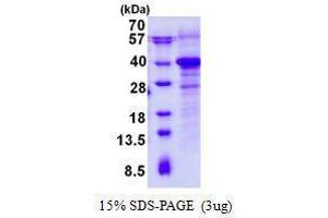 Image no. 1 for RWD Domain Containing 1 (RWDD1) protein (ABIN2131667)