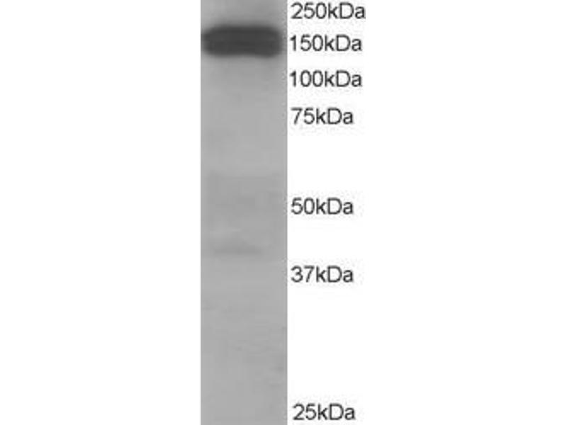 Western Blotting (WB) image for anti-Dynactin 1 (DCTN1) (C-Term) antibody (ABIN249667)