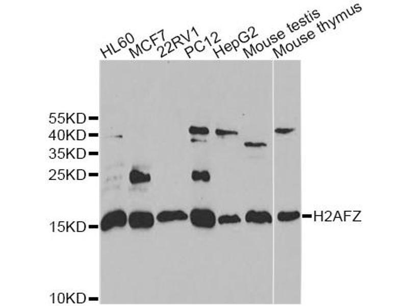 Image no. 2 for anti-H2A Histone Family, Member Z (H2AFZ) antibody (ABIN2562983)