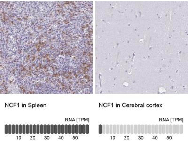 Immunohistochemistry (Paraffin-embedded Sections) (IHC (p)) image for anti-Neutrophil Cytosol Factor 1 (NCF1) antibody (ABIN4338258)