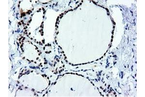 Image no. 15 for anti-5'-Nucleotidase Domain Containing 1 (NT5DC1) antibody (ABIN1499838)