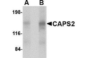 Image no. 2 for anti-Ca++-Dependent Secretion Activator 2 (CADPS2) (Center) antibody (ABIN499527)