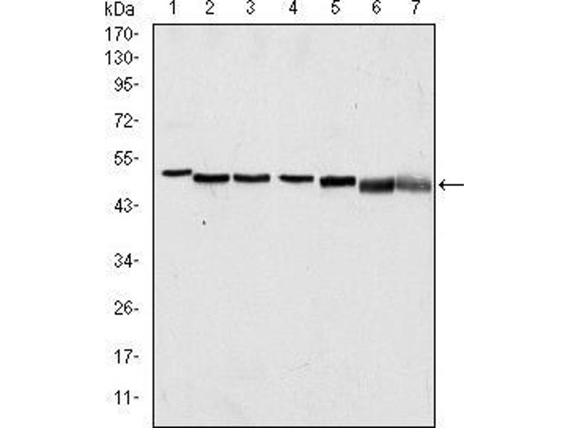 Western Blotting (WB) image for anti-p63alpha antibody (ABIN969337)