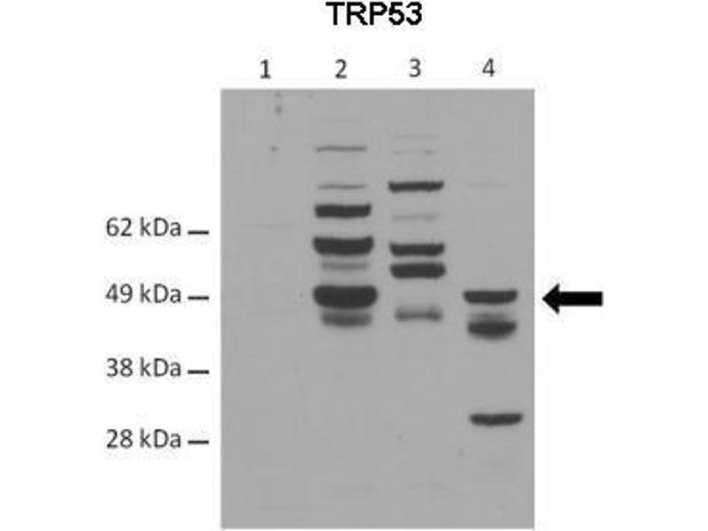 Western Blotting (WB) image for anti-Tumor Protein P53 (TP53) (C-Term) antibody (ABIN2779979)
