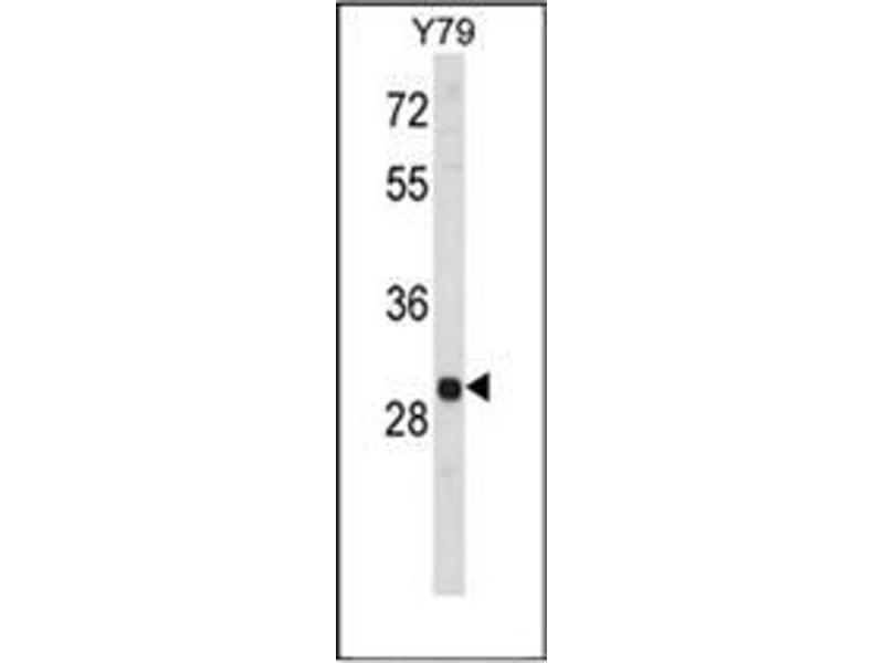 Western Blotting (WB) image for anti-Mitogen-Activated Protein Kinase 1 Interacting Protein 1-Like (MAPK1IP1L) (AA 115-145), (C-Term), (Middle Region) antibody (ABIN953305)