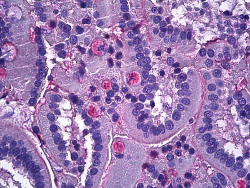 Immunohistochemistry (IHC) image for anti-Netrin 1 (NTN1) (AA 591-604) antibody (ABIN769046)